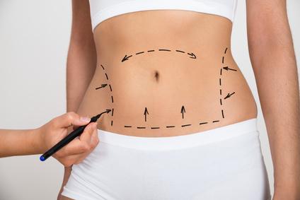 Abdominoplastia Cirugía estética