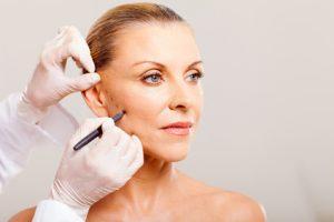 Lifting facial. Cirugía estética MAVE