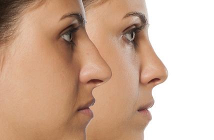 Rinoplastia. Cirugía estética
